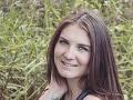 FOTO Dievčina si obliekla v horúčave legíny: Keď potom zbadala, ako ju opálilo!