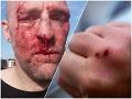 FOTO Poľského novinára zmasakrovali priamo na ulici: Najprv slovná prestrelka, potom päste a kopance