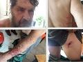 Ďalší útok medveďa! FOTO Známy fotograf unikol len o vlások: Na TOMTO turistickom chodníku číha smrť