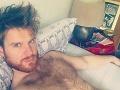 Mladík chcel mať sex, skončil so zdevastovaným penisom: FOTO jeho utrpenia