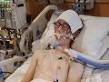 VIDEO Tínedžer (16) vapoval stokrát denne: Príšerný zlozvyk ho takmer zabil
