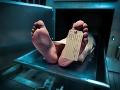Vedci viac ako rok skúmali mŕtvoly a zistili niečo absolútne nečakané