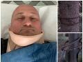 Štvorkolkár Igor sa vracal z Kubínskej hole: FOTO Napnuté oceľové lano mu takmer odseklo hlavu