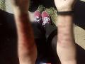 Krvavý incident v centre Opavy: Pomôžte mi zabiť sa, kričala mladá žena, žiletkou si rezala ruky