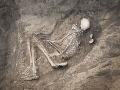 Nepredstaviteľné utrpenie: Tento mladík zrejme zomrel najkrutejšou smrťou v histórii
