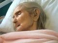 Horor v dome pre seniorov: FOTO Krehká starenka doplatila na surové zaobchádzanie opatrovateľky