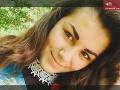 Horor v ambulancii: Anastasia (†18) dostala anafylaktický šok, po osudnej chybe zubárky zomrela