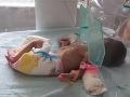 Hrozný nález, z ktorého vám príde zle: VIDEO V plytkom hrobe našli zaživa pochované dieťatko