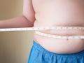 Hrozivá štatistika UNICEF: Deti sa rodia buď obézne alebo podvýživené