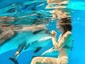 Žena (35) plávala s delfínmi, no prišla mimoriadne krutá rana: Prišla o ruky aj o prsník!