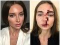 Valentina chcela plnšie pery, skončila so zlomeným nosom: VIDEO Doktorka ma zbila! Hovorí kráska