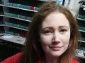 Žena (31) dvadsať rokov trpela silnými migrénami: Zázračne vyzdravela, keď prestala jesť TOTO