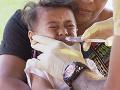 Epidémia osýpok v tichomorskom štáte zabila už 24 detí, vyhlásili výnimočný stav