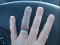 FOTO Žena sa pochválila snubným prsteňom: Ľudia sú zhrození, veď ti budú musieť amputovať prst!