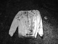 Brutálny útok v okrese Poltár: Mladíka (19) museli ihneď operovať, podozrivý je v rukách polície