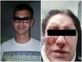 Brutálny útok na Slovenku Mišku v Prahe: Kopanec do hlavy v metre! O agresívnom ex prehovorila jej mama