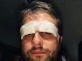 Vlado Kobielsky sa s fanúšikmi podelil o fotku s obviazanými očami. Podstúpil operáciu.