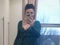 Dievčina (26) si objednala na internete šaty: Uvidíte ich spodok, nebudete sa vedieť prestať smiať