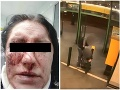 VIDEO brutálneho útoku na Slovenku v Prahe: Len pre silné povahy, Miškin ex ako odtrhnutý z reťaze