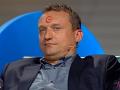Marcel Forgáč si zo stretnutia s Luciou odniesol pomaľované čelo.