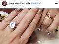 Amandu Bynes požiadal jej priateľ o ruku pomerne rýchlo. Dvojica randila len pár mesiacov.