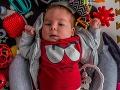 Alexove (8 mes.) prvé úspechy po miliónovej liečbe sleduje celý svet: Mamička sa podelila o malý zázrak