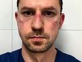 KORONAVÍRUS Slovák žijúci v Taliansku: FOTO Keď zistíte, čo sa skrýva za jeho ranami, neubránite sa slzám