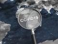 Vedci odhalili ohnisko novej nákazy: Veľké prekvapenie, najväčší sklad koronavírusov na svete!