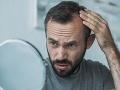 Neuveríte, čo dokáže spôsobiť vypadávanie vlasov! A takto sa dá porucha liečiť
