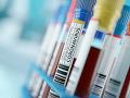 Eurokomisia doplnila smernicu o biologických látkach o nový KORONAVÍRUS