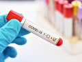 KORONAVÍRUS v Bielom dome, zamestnanec stravovacieho zariadenia je infikovaný