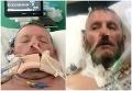 Muž s koronavírusom upadol do kómy, lekári mu nedávali šancu na prežitie: FOTO Stal sa zázrak!