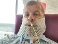 FOTO Muž mal strach zo zubárov, na prehliadke nebol 27 rokov: Ani netušil, akú hrôzu má v ústach