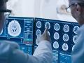 KORONAVÍRUS Výsledky nových štúdií: COVID-19 môže zvýšiť riziko mŕtvice, NÚSCH je v záveroch opatrný