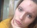 FOTO Blondínka 12 rokov chľastala a drogovala: Keď uvidíte, ako teraz vyzerá, padne vám sánka