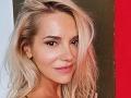 Ďalšia plastika! Dara Rolins zmenená v tvári: Kvôli operácii nosa išla až na Ukrajinu!