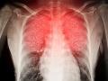 Pitva pacientov, ktorí zomreli na COVID-19, odhalila strašné skutočnosti