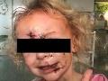 Rozárka (3) prežila desivý útok, tváričku jej dohrýzol pes! FOTO dievčatka vás prekvapí, úsmev napriek všetkému