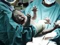 Úžasná FOTO dvojičiek, ktoré prišli na svet cisárskym rezom: Toto chirurgovia ešte nikdy nevideli