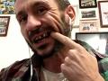 Lacko Cmorej prišiel pri páde z vagóna o zub.