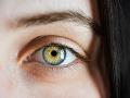 FOTO V očných viečkach máme malé záhadné dierky: Viete, na čo slúžia?