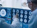 Veľký objav slovenských vedcov: Otvára potenciál pre ďalší onkologický výskum