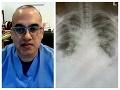 Lekár zverejnil varovné FOTO: Dajte si pozor! Takto KORONAVÍRUS dokáže zničiť pľúca!