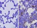 Vedci hlásia veľký úspech: Nová protilátka funguje proti všetkým obávaným mutáciám KORONAVÍRUSU!