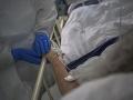 Maďarská lekárska komora žiada preveriť pľúcnu ventiláciu pacientov s KORONAVÍRUSOM