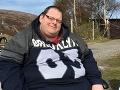 FOTO Superobézny Škót sa