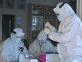 KORONAVÍRUS Na Slovensku pribudlo viac ako 300 prípadov, žiadna nová obeť pandémie