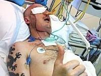 Tvár  Poliakovi dokaličila rezačka kameňa koncom apríla 2013
