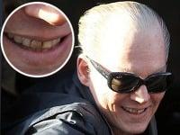 Usmiaty Johnny Depp vyceril hnedé a zanedbané zuby.