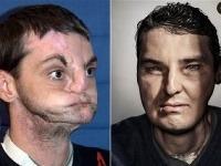 Richard Norris pred transplantáciou a po nej
